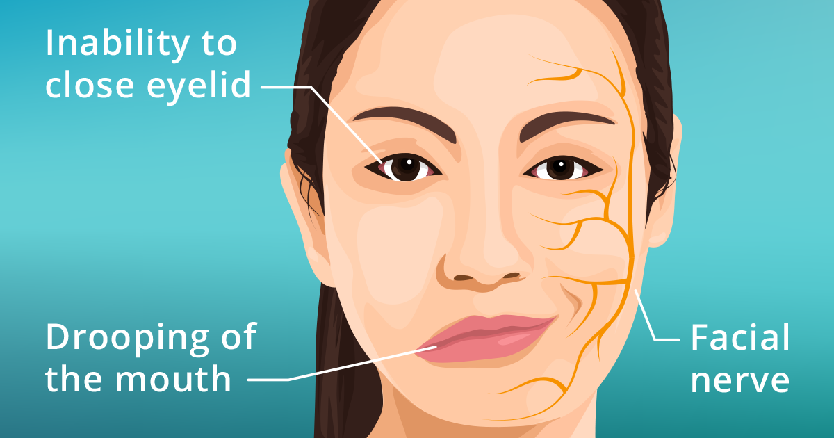 Illustration of woman suffering from bells palsy symptoms