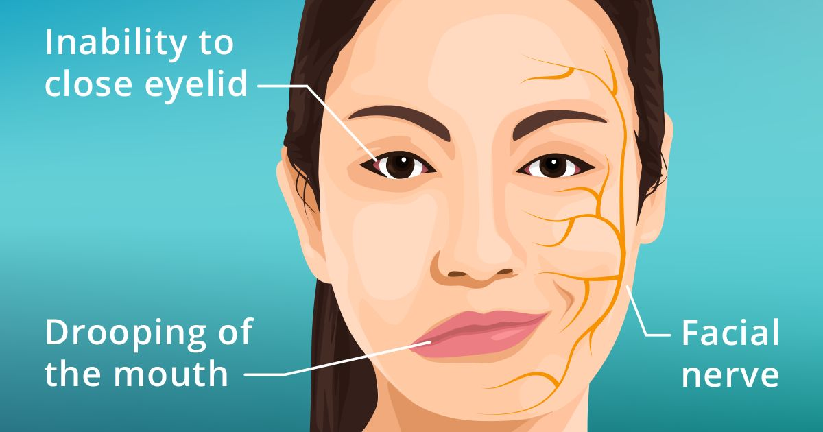 Illustration of a woman suffering from Bell's Palsy symptoms
