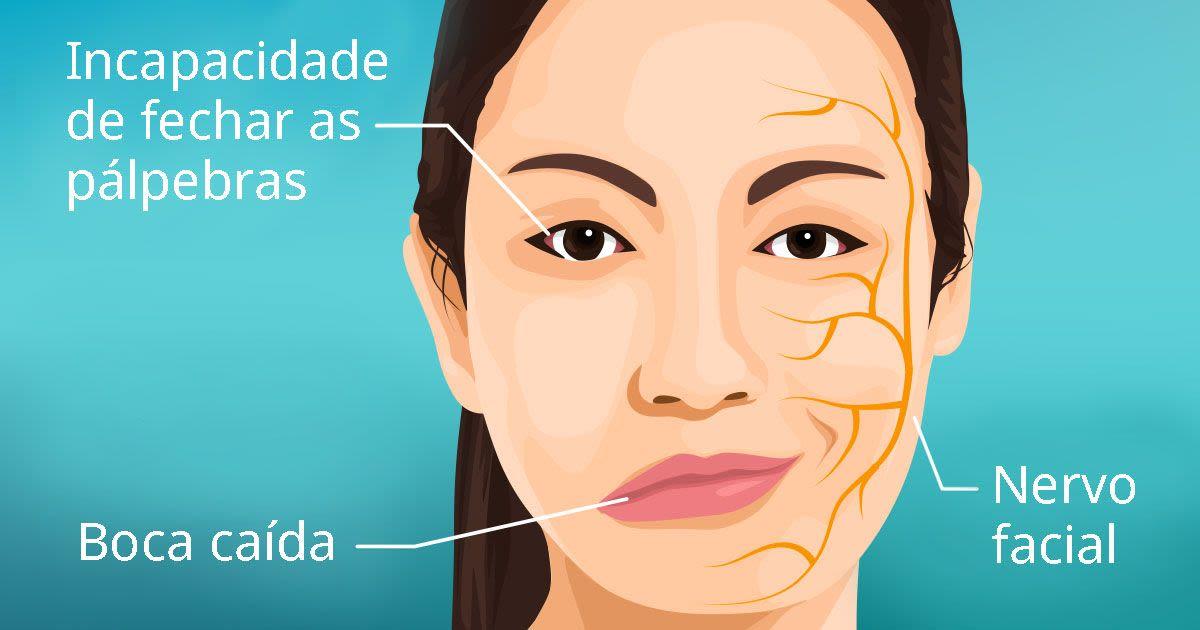 Ilustração de uma mulher sofrendo com sintomas de Paralisa de Bell, mais conhecida como paralisia facial.