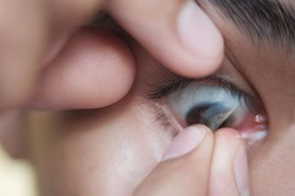 How To Remove Contact Lens