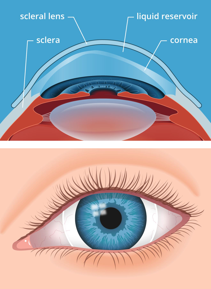 Types of Scleral lenses