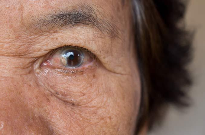 白内障の目のクローズアップ