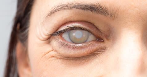 Closeup of an eye with a dense cataract