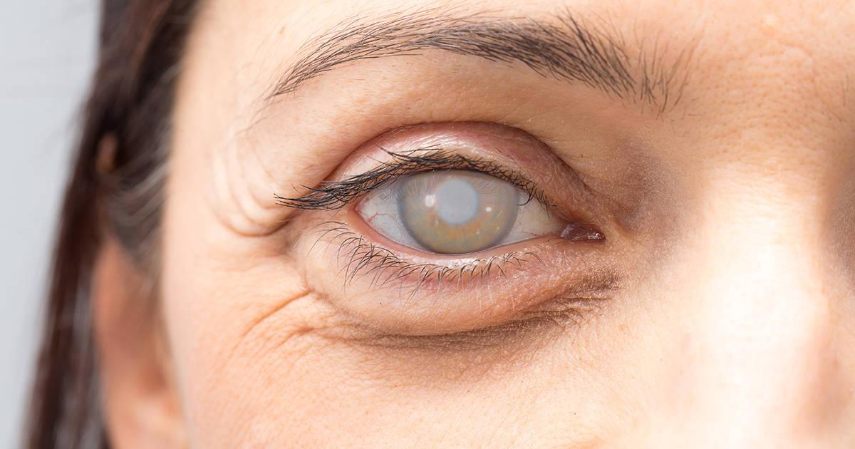 Primo piano di un occhio con una cataratta densa