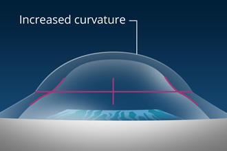 Increased Curvature shown on eye