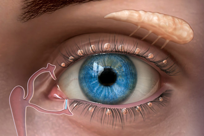 Dry eyes - 12 ways to relieve dry eye syndrome