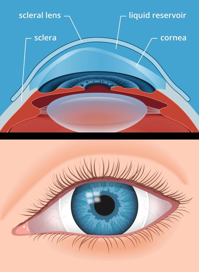 Scleral Contact Lenses For Keratoconus And Irregular Corneas