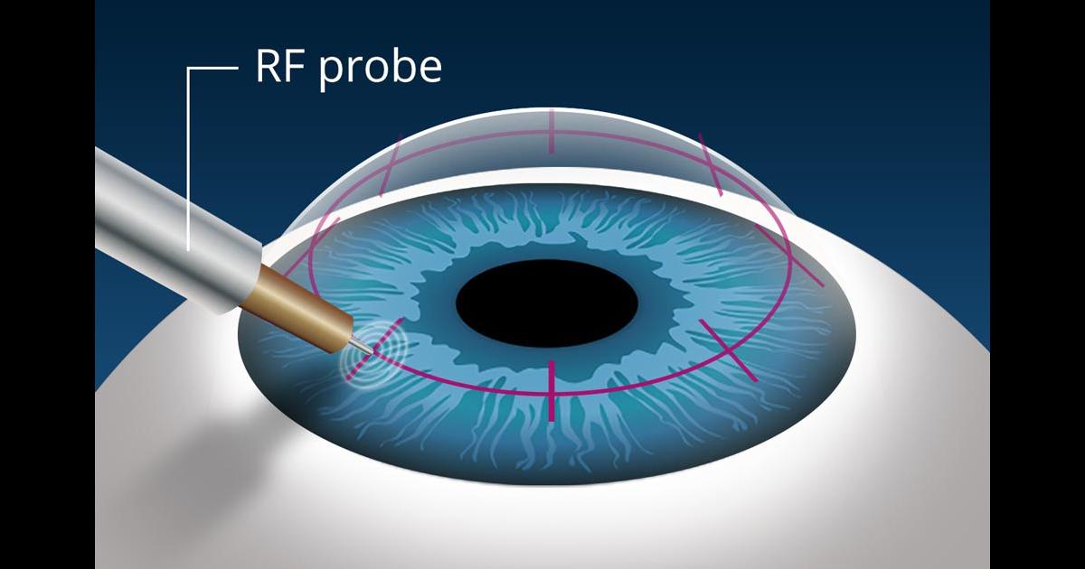 Vision surgery for presbyopia