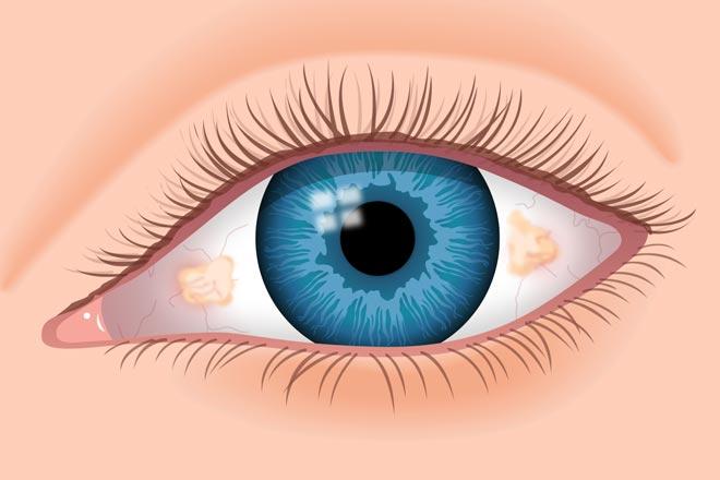 ภาพประกอบของ Pinguecula บนดวงตา