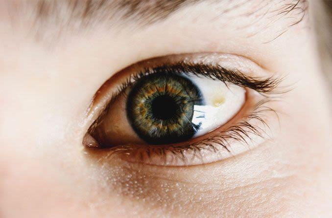 Pinguecula am Auge