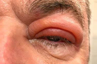 Man with swollen eyelid due to eye infection
