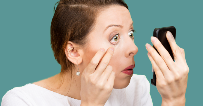 woman with swollen eyelids checking on her smartphone