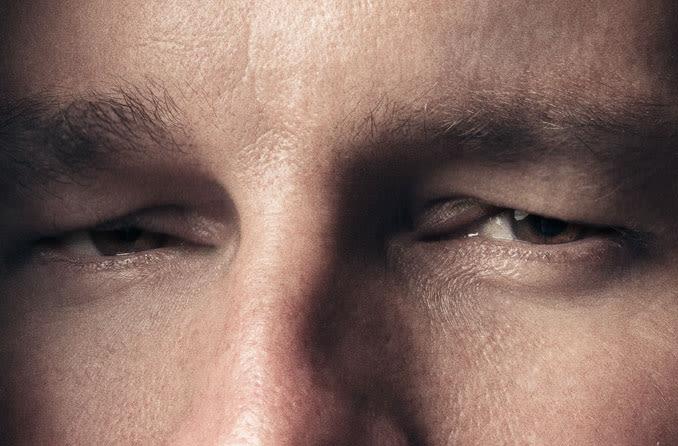 رجل يعاني من تورم الجفون