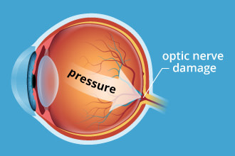 Illustration of intraocular pressure in the back of the eye
