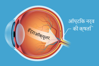 Illustration of intraocular pressure in the back of the eye - Hindi
