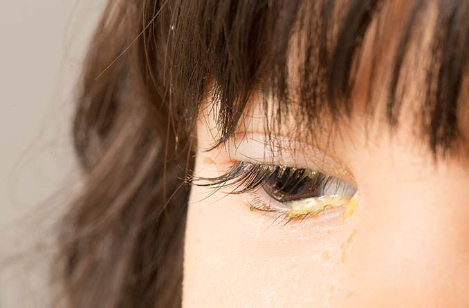 รูปภาพของการคลายตา