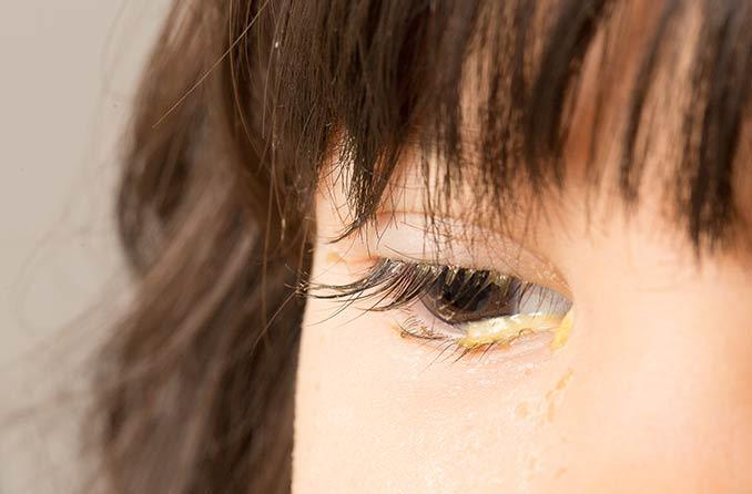 目の放電のある子供の画像