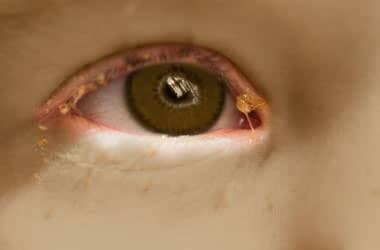 göz akıntısı görüntüsü