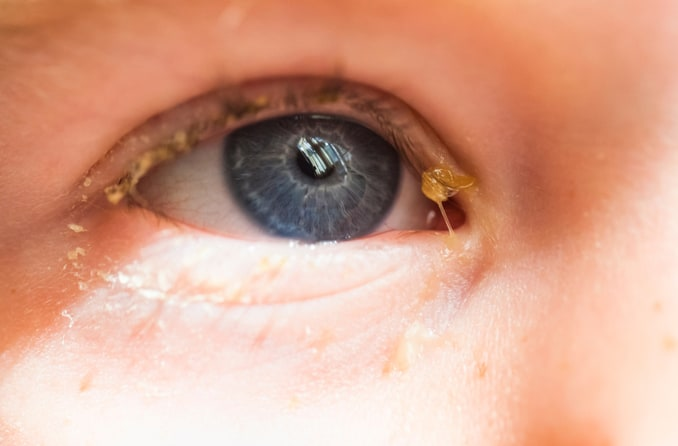Immagine di un occhio appiccicoso (secrezione oculare)
