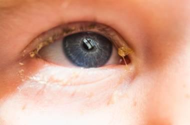 Изображение ребенка с выделениями из глаз