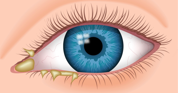 diagram of eye gunk eye discharge - causes, types, treatment diagram of the eye