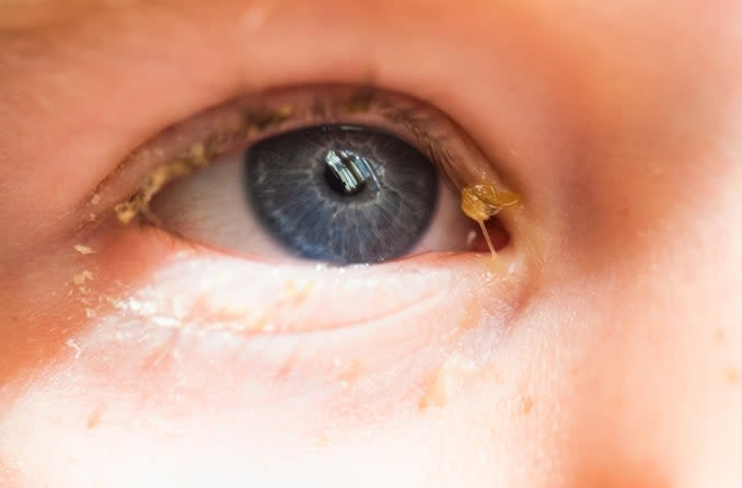 Image of child with eye discharge