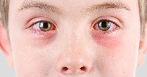Garçon souffrant de conjonctivite (œil rose)