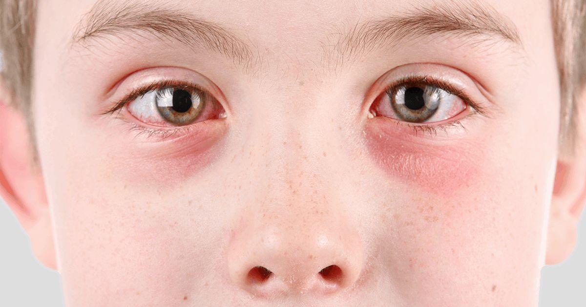 menino que sofre de olho rosa