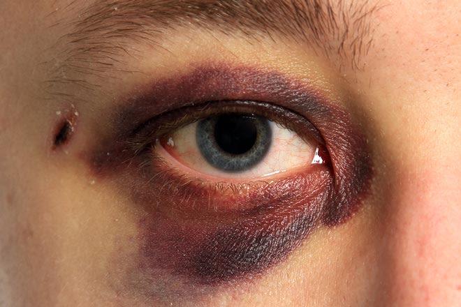 Pessoa com lesão no olho roxo