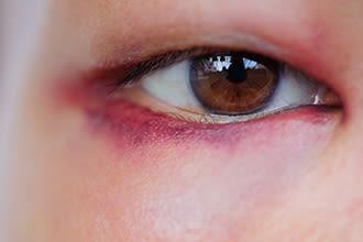 眼瞼皮下出血の拡大図