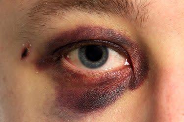 Siyah göz yaralanması olan kişi