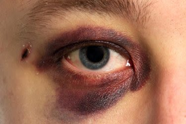 Blaues Auge mit Verfärbung im Ober- und Unterlid (Periorbitales Hämatom)