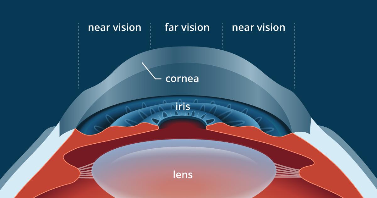 PresbyLASIK: LASIK for presbyopia correction