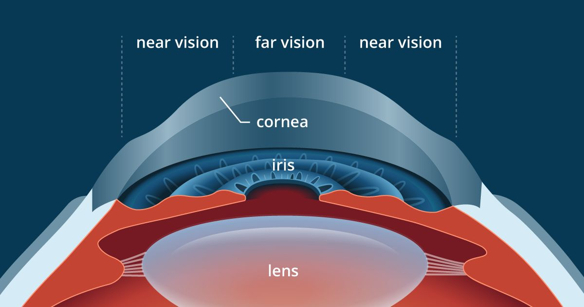 illustration of cornea profile after presbyLASIK
