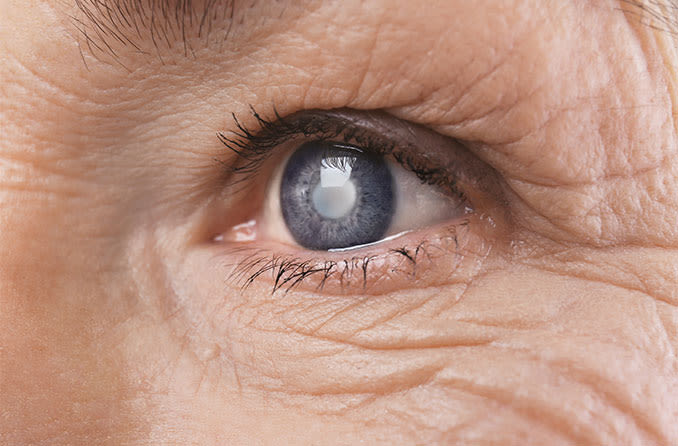Cataracts: Definition and how it affects vision
