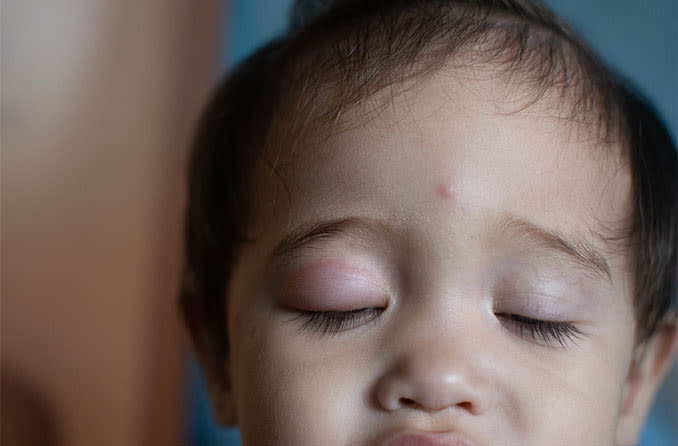 toddler with swollen eyelid