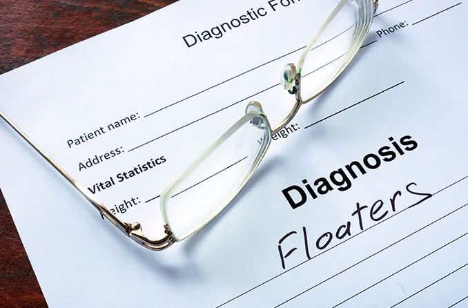 eye floaters doctor diagnosis