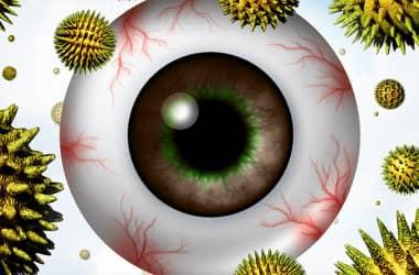 رسم توضيحي لمقلة العين مع حبوب اللقاح العائمة