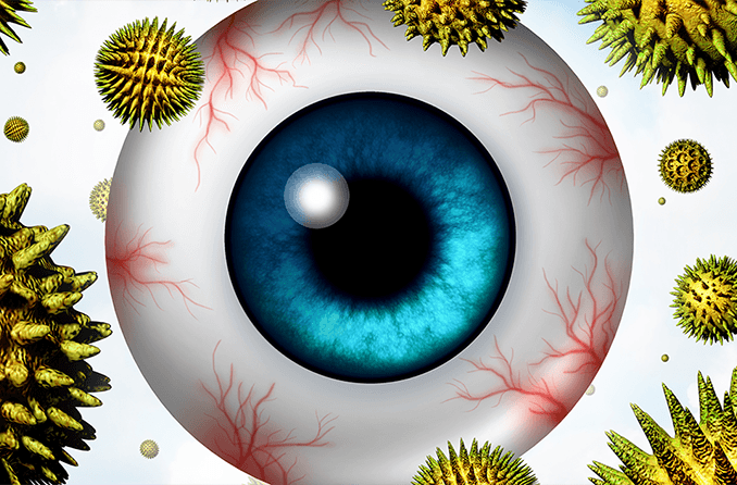Itchy eyes: Causes and cures