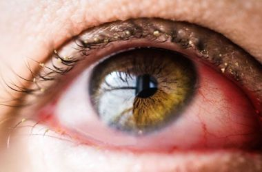 Closeup of an eye with conjunctivitis