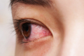 A closeup of an eye with conjunctivitis.