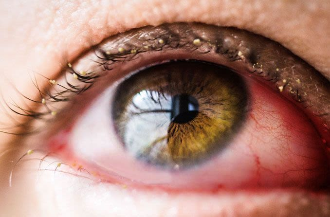 A closeup of an eye with conjunctivitis