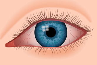 illustration of dry eye