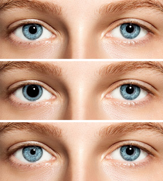 Anisocoria: Why is one pupil bigger than the other?