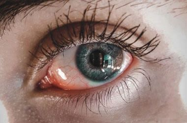 Person suffering from eye infection