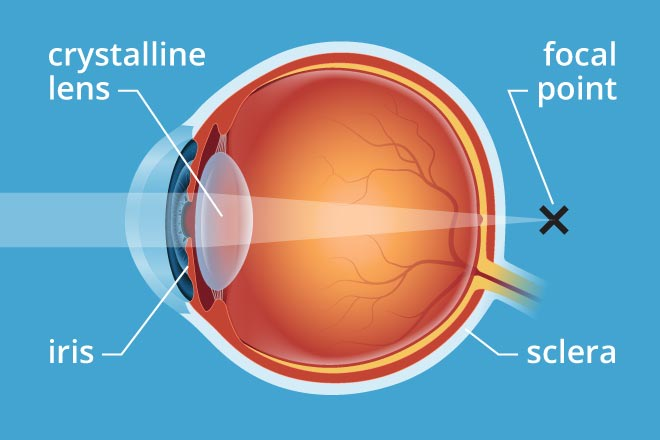 Illustration of the eye anatomy where the eye's lens hardens with age, narrowing your focal point
