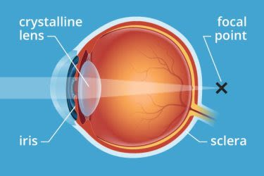 Presbyopia: Causes, symptoms and treatment | All About Vision