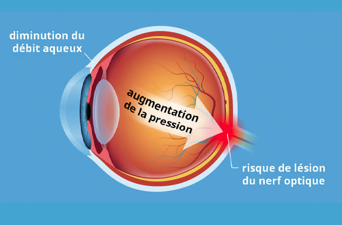 Illustration du diagramme de l'état d'hypertension oculaire