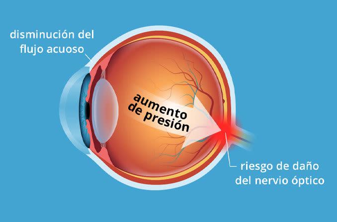 Ilustración del globo ocular y cómo la presión ocular elevada puede causar daño al nervio óptico