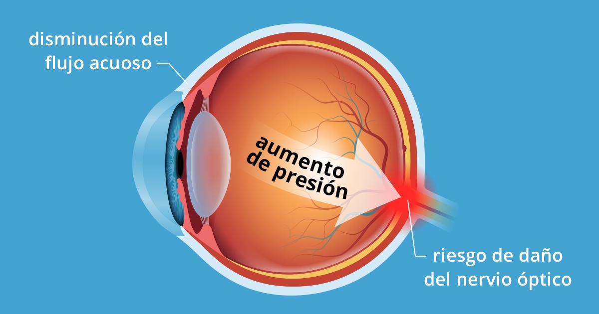 La presion ocular produce dolor de cabeza